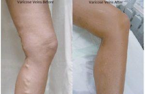 veins beforeafter-labelled