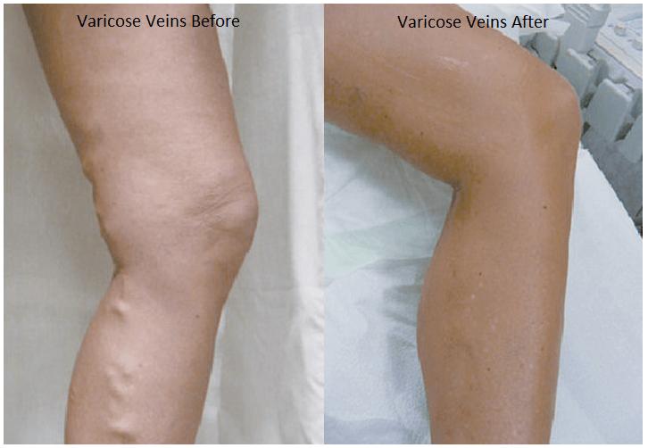 veins-beforeafter-labelled
