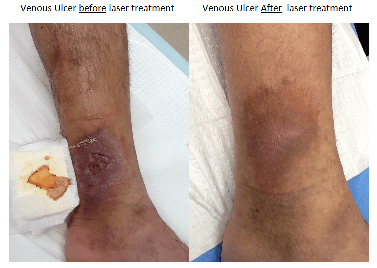 venous-ulcer-before-after-labelled