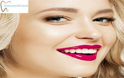 Dental-Veneers-Sydney