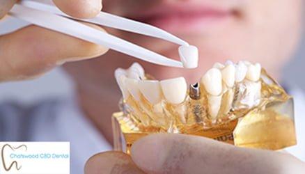 Dental_Implant_Sydney