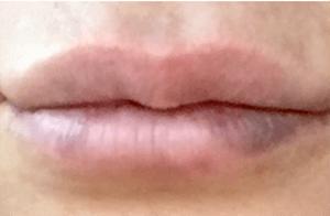 lipsbruise