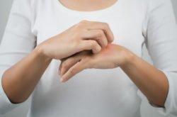 Got an itch to scratch?! Seven eczema myths debunked