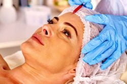 Goodbye, wrinkles! A first-timer tries Botox