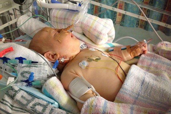 neuroblastoma operation