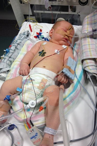 Baby in hospital with neuroblastoma