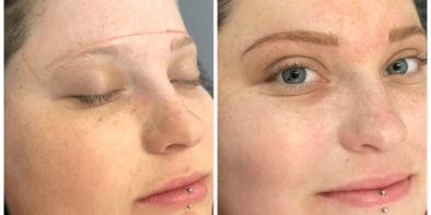 eyebrowsaftercancermin1583145414