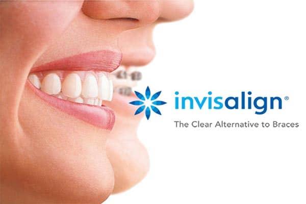 Clear-Dental-Berowra-2