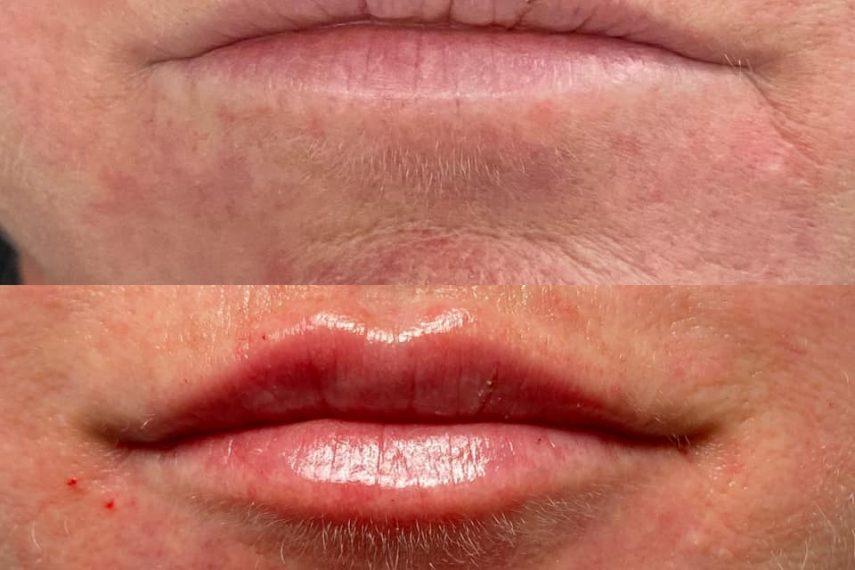 lips21601265052