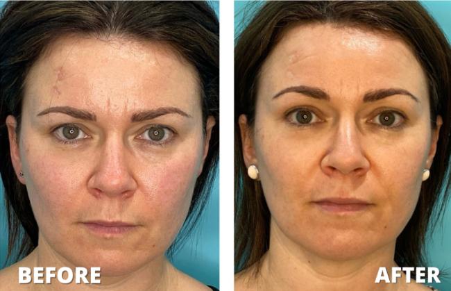 UltraFormer Before & After