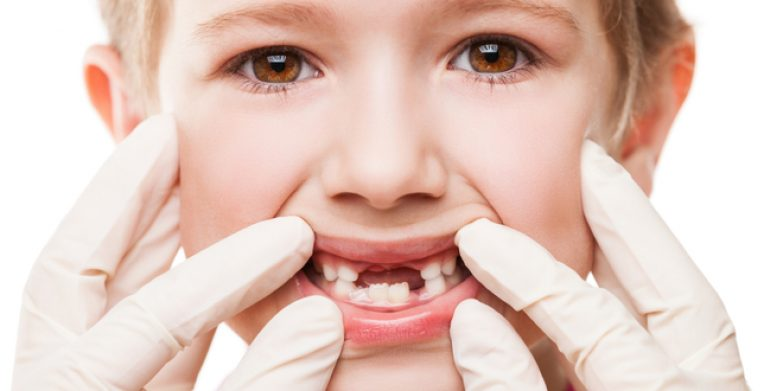 Dentist examining child teeth