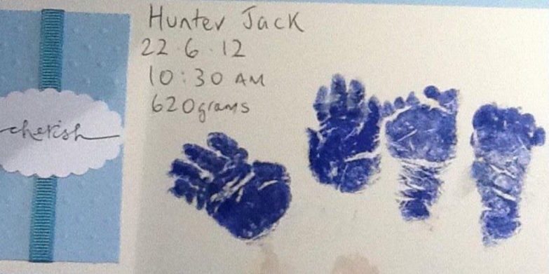 red-nose-day-2017-baby-hunter-jack-mckiernan-foot-and-hand-prints